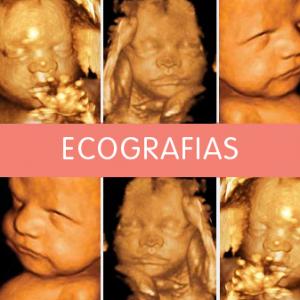 Ecografías 4D y 5D