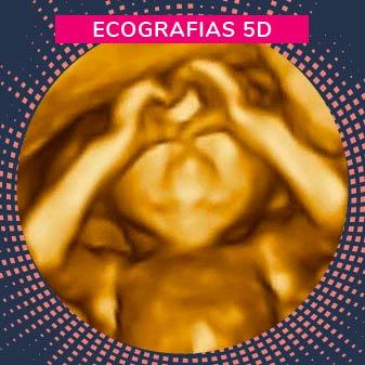 Ecografias 5D